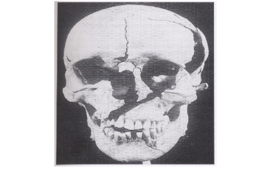 Forensic anthropology and archaeology: Identifying battlefield remains